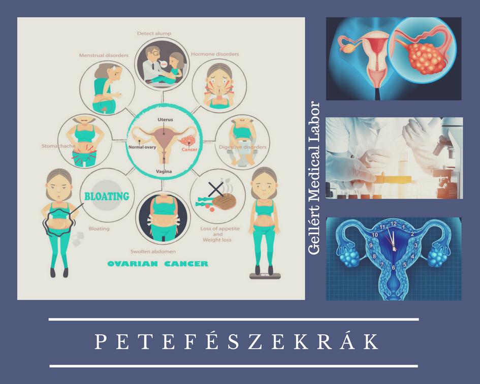 petefészekrák halálozási aránya)