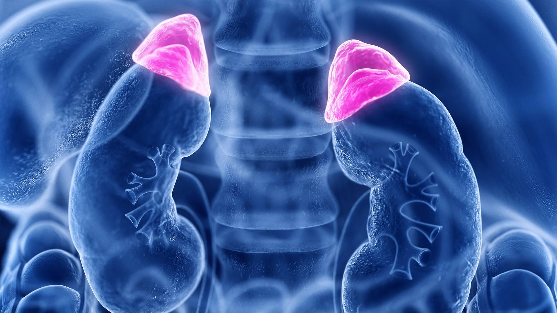 A mellékvesevelő-daganat (phaeochromocytoma) tünetei